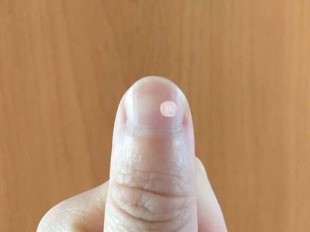 белая точка на большом пальце