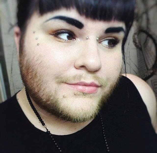 чешется борода у девушки